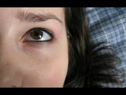 Уход за кожей вокруг глаз: убрать синяки под глазами