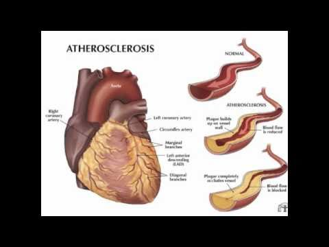 Cholesterol, Statins, The Truth Revealed! Part 1 - MUST SEE!