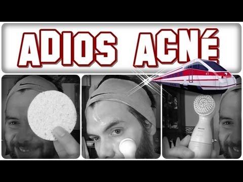 Cómo eliminar granos de la cara de forma sencilla, fácil, rápida y en casa by landoigelo.com