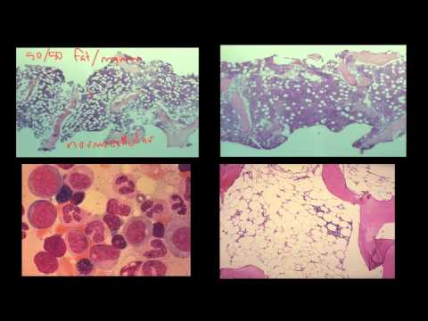 Blood Cells and Bone Marrow (Part 2 of 2)