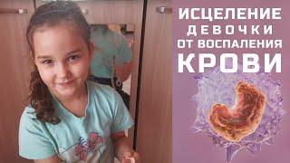 ИСЦЕЛЕНИЕ ВОСПАЛЕНИЯ КРОВИ  / молитва Владимира Мунтяна