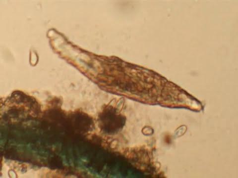 Microorganismos en agua estancada