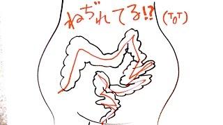 便秘解消☆3分!ねじれ腸マッサージ ☆ねじれ腸チェックテストつき