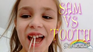 Sam LOSES HER FRONT TOOTH! NO BLOOD!