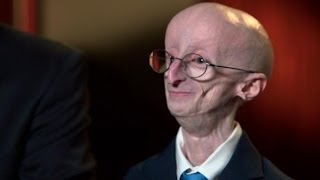 Remembering Sam Berns