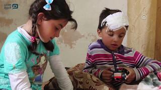 """""""محيو"""" وندى.. نظام الأسد أباد عائلتهما وتركهما جريحا الجسد والروح"""
