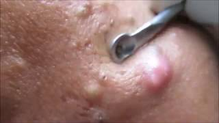 After A Long Time Comedone Extraction Video