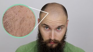 BALDING HAIR GROWTH - Growing out my balding hair
