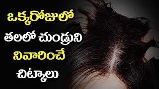 How to Remove Dandruff Naturally - Mana Arogyam Telugu Health Tips