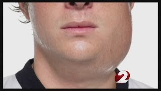 Mumps outbreak at OSU grows