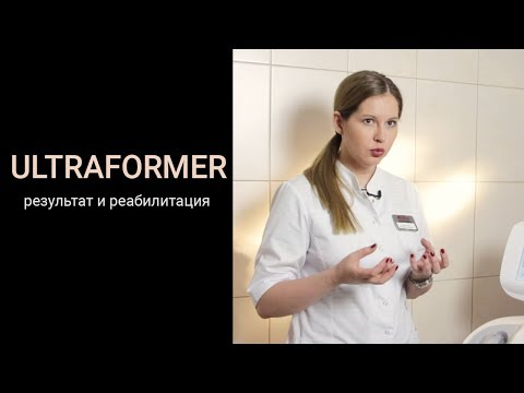 Ultraformer - результат и реабилитация