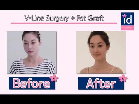 [korean plastic surgery review] 1. facial bone contouring surgery