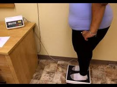 Obesity is officially a disease - American Medical Association