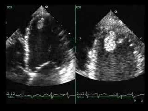 Dilated cardiomyopathy with mural thrombus youtube for Mural thrombus aorta
