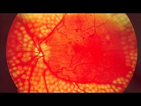 Ayurvedic treatment for Diabetic Retinopathy