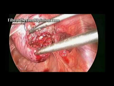 Laparoscopic Myomectomy for Fibroids