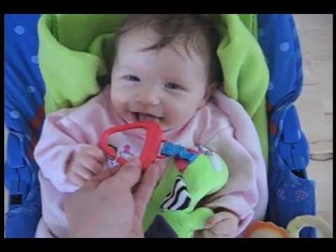 Alternating Hemiplegia Child Alternating Hemiplegia of