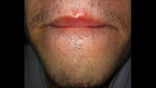 Minoxidil para la barba - Primer mes | Juan Daniel Osorio.