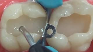 Dentsply Sirona Endodontics