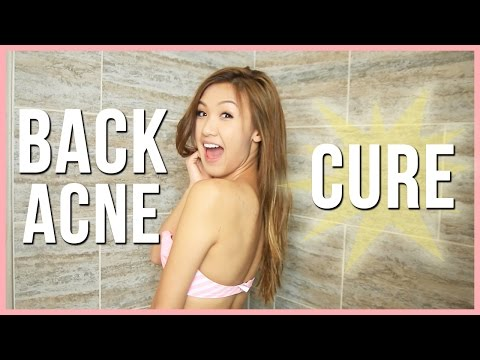 My Back Acne Cure! | ilikeweylie