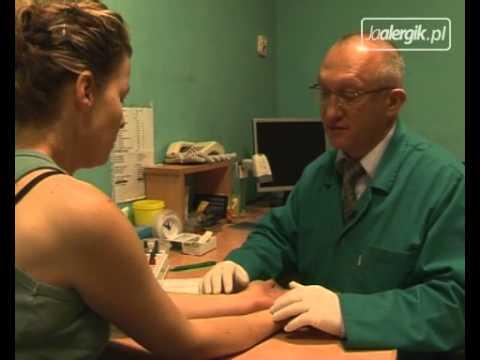 Jak Przebiegają Testy Skórne Na Alergię? Cz1. Alergia I Porady.