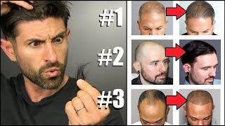 Top 3 Hair Loss Fixes EVERY GUY SHOULD KNOW ABOUT!