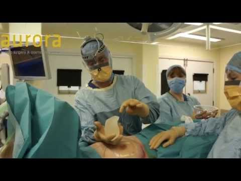 Silent Single PIP Rupture - Implant Removal and Replacement Surgery
