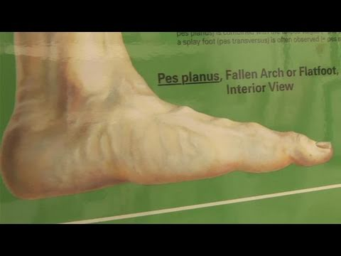 How To Correct Flat Feet