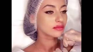 Painful Procedure of Lips Surgery For Getting Beautiful Lips - Sehat