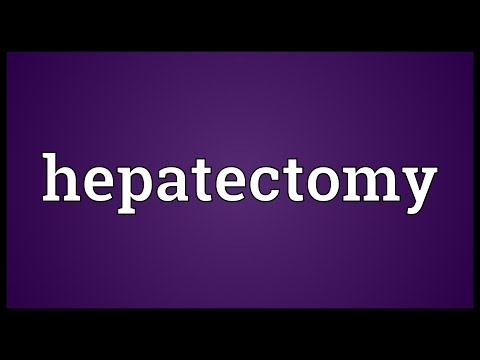 Header of hepatectomy