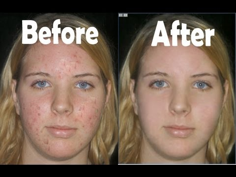 Remove Acne and Make Face Soft in Adobe Photoshop 7