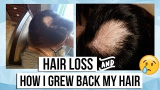 My Alopecia Areata Story (Hair Loss) + Products I used to grow my hair back!