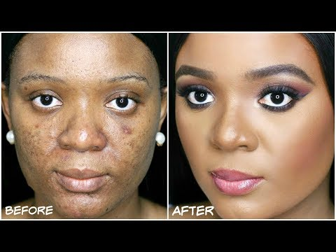 HOW TO COVER ACNE. DARKSPOTS & HYPERPIGMENTATION - MY ACNE COVERAGE FOUNDATION ROUTINE   OMABELLETV