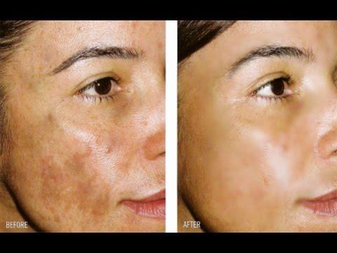 Crema Para Quitar Manchas Oscuras: HIDROQUINONA / Hydroquinone For Skin Lightening
