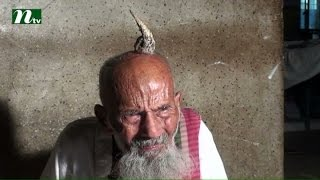 Horn in the head of old man at Jamalpur district in Bangladesh l News & Current Affairs