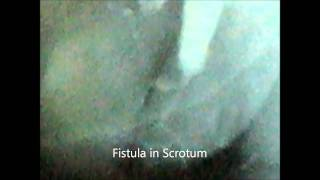 Fistula In Scrotum and Bladder Diverticulum Seen In RGU