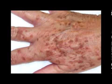 Remedios caseros para las manchas en las manos como - Como quitar las humedades de la pared ...