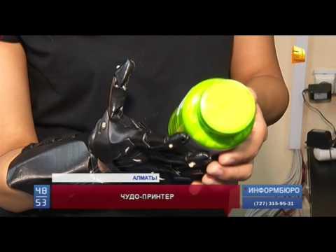 20-летней девушке напечатали протез руки на принтере
