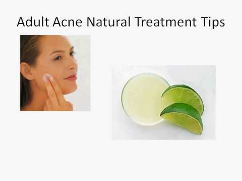 Adult Acne Natural Treatment Tips