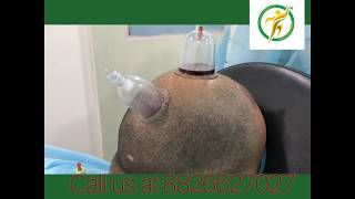 Must watch live feedback of patient after #cupping #hijama for #hairfall at our clinic #Delhi