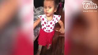 Những bước đi đầu tiên của em bé tật nguyền ở Thanh Hóa