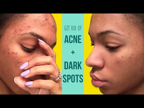 How I Get Rid Of Acne And Fade Dark Spots
