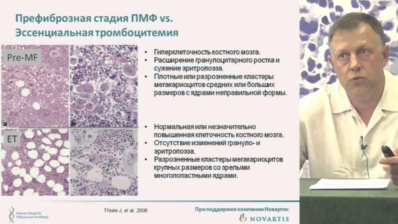 Миелофиброз фото