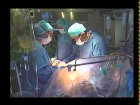 CNN Chile, Cirugias sin Sangre, Marzo de 2009