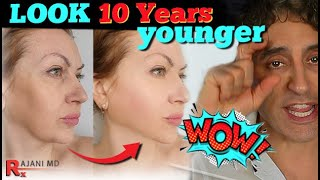 LOOK YEARS YOUNGER WITHOUT SURGERY // PlasmaSculpt with Dr Rajani