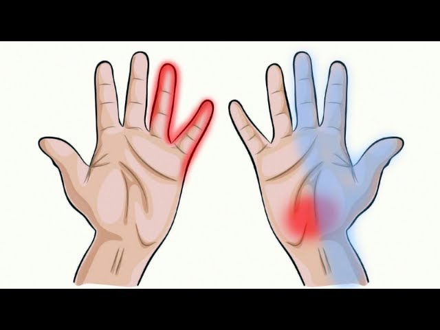 7 Things Your Hands Say About Your Health