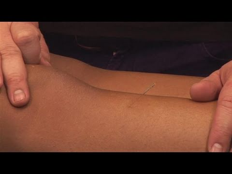 How To Perform Acupuncture