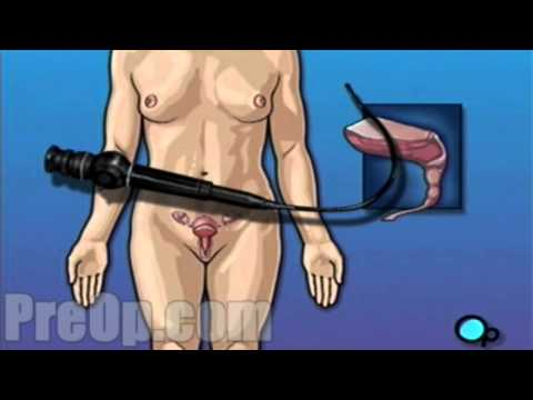 Cystoscopy Female Vaginal Surgery Preop® Patient Education & Engagement Company video