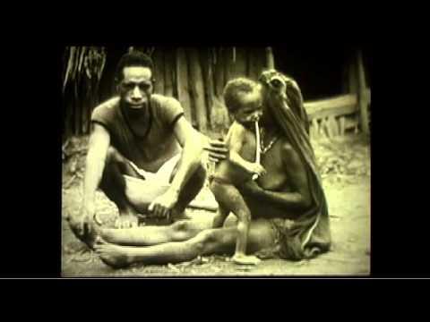 Kuru - Michael Alpers on his time in the PNG communities
