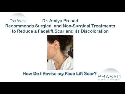 How to Treat Scars from a Facelift Surgically and Non-Surgically